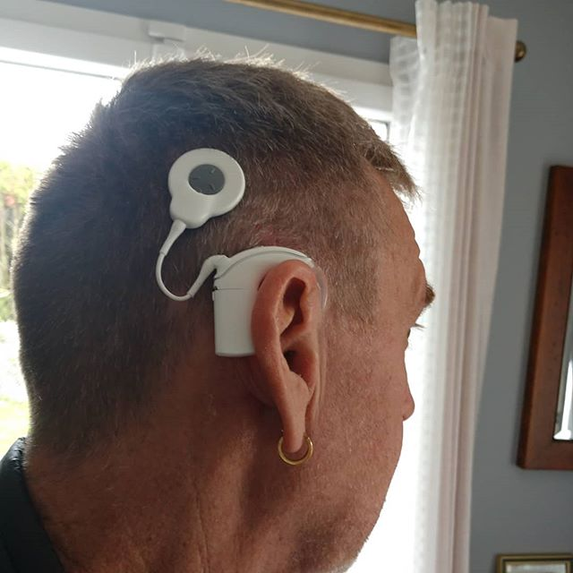 Cochlear Implant operation for better hearing